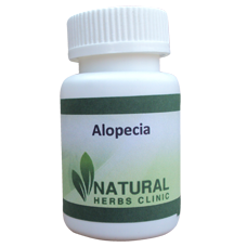 Natural Herbal Remedies For Alopecia
