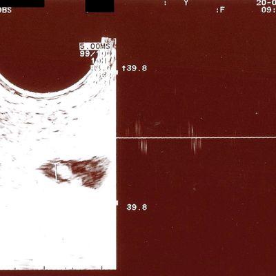 20 juin : 2e visite chez la gynécologue & résultat de la prise de sang