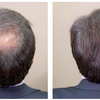 Revifol : Increased Hair Growth & Enhance Personality
