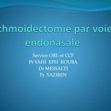 Ethmoidectomie par voie endonasale