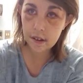 Pendant 10h son copain la bat à mort. Mais le message qu'elle enregistre sur son lit d'hôpital a fait le tour du monde!