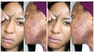 Natural Skin Lightening Cream For Black Skin