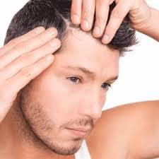Best Hair Transplant Surgeon Delhi