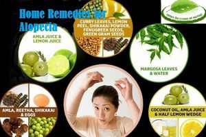 Home Remedies for Alopecia to Grow Your Hair Naturally