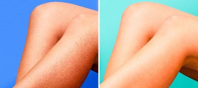Con sólo un producto que tienes en tu hogar puedes lograr la perfección en tu cabello y tu piel