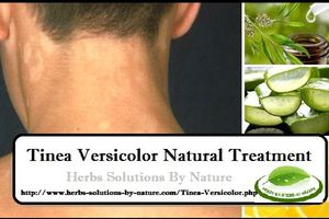 7 Natural Treatment for Tinea Versicolor