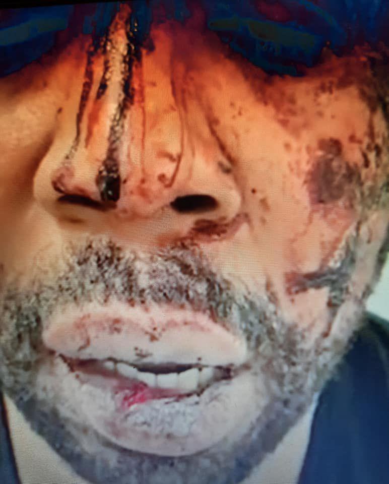 «Michel ZECLER, un producteur Noir, de musique tabassé et victime d'insultes racistes» par Amadou Bal BA - http://baamadou.over-blog.fr/