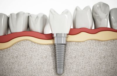 How to Get Dental Implant Replacement for Single Teeth