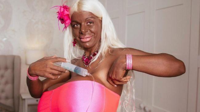 El ser humano y sus cosas: algunas negras quieren ser blancas, mientras algunas blancas quieren ser negras. Tras el aumento de su pecho, Martina Big decidió cambiar el color de su piel, el resultado asusta (vídeo).