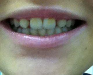 Meine Zähne