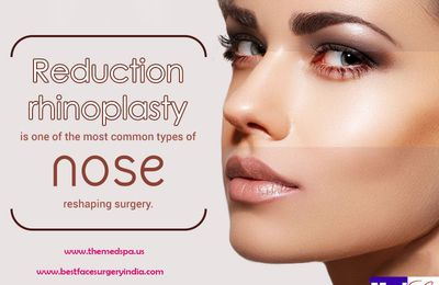 Rhinoplasty for Beautiful Harmonious Nose with Other Facial Elements
