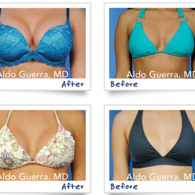 Busting 10 False Rumors About Breast Augmentation
