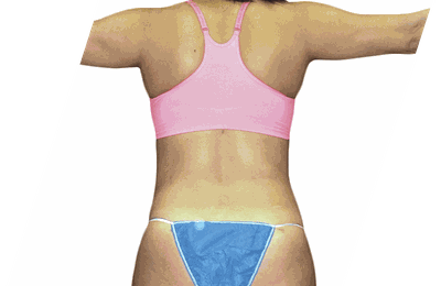 Know about Cosmetic Surgery and its benefits