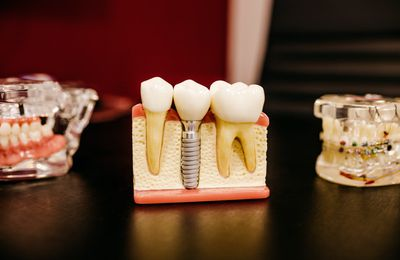 What You Can Expect to Learn From a Root Canal Specialist