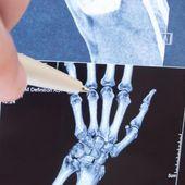 "Polyarthrite, "" orteil Covid "" : l'imagerie confirme ces symptômes durables de la Covid-19"