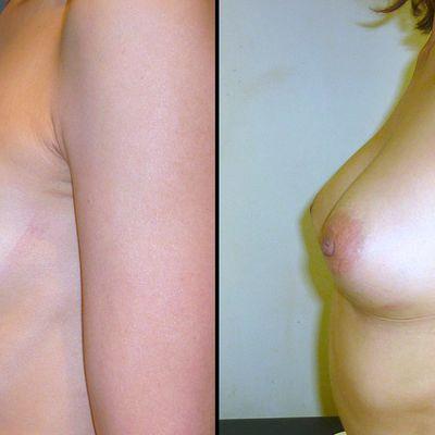 N'ayez plus honte de votre poitrine grâce à l'augmentation mammaire par lipofilling!