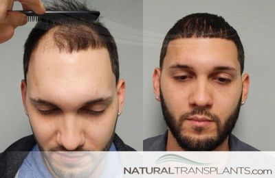 Searching for answers about   FUT vs FUE Process Fort Lauderdale Alopecia Cure