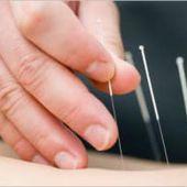 Acupuncture et Médecine Traditionnelle Chinoise à Valence